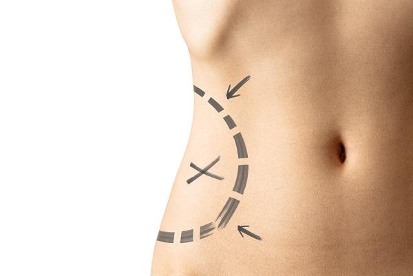 Tratamento exclusivo para reduzir gordura localizada chega em Itapuã